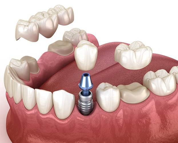 Animated dental implant tooth replacement versus traditional bridge restoration
