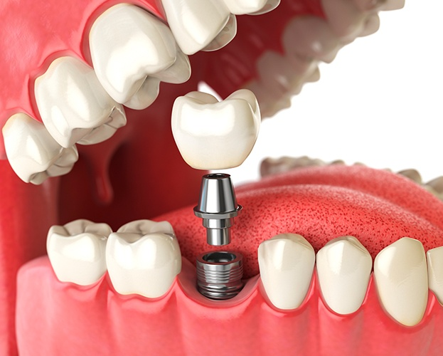Animated parts of the dental implant supported replacement tooth