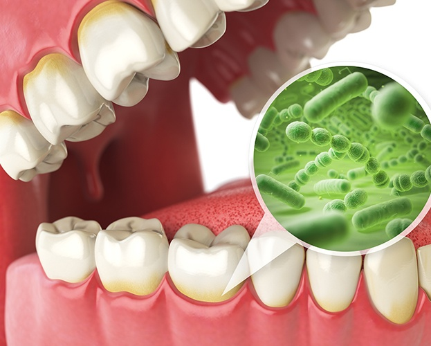 Animated smile with closeup of bacteria at gum line