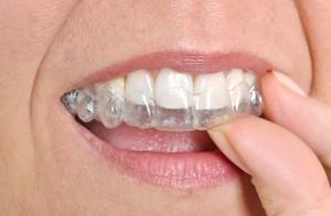 14221 dentist