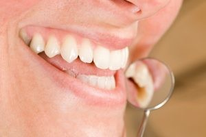 Your dentist in Williamsville helps to promote healthy gums.